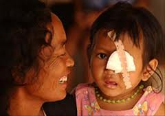 sight restoration in Cambodia